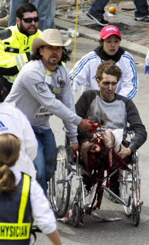 Boston bomb victim